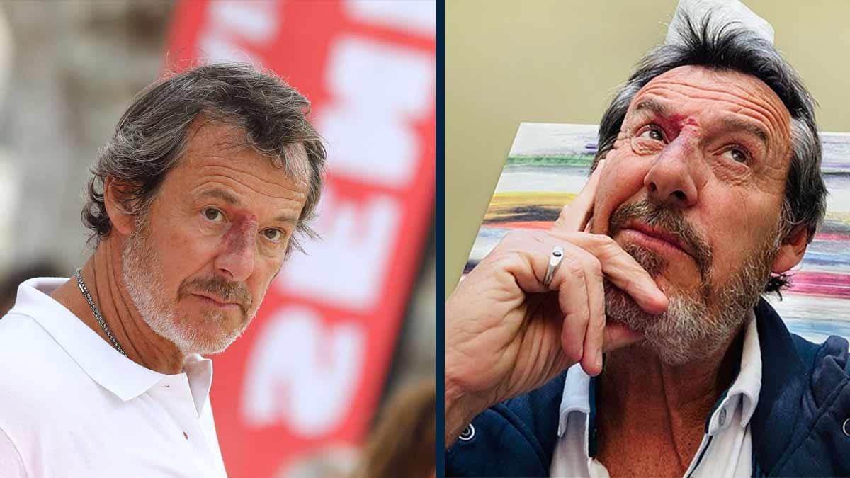 Jean-Luc Reichmann est au plus mal il est rongé par un cancer à un stade avancé.